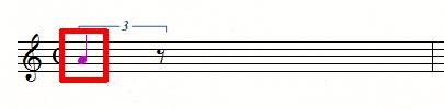 3連符2個分の4分音符が設定